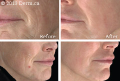 Un-retouched photograph; actual Myskinexpert.ca patient
